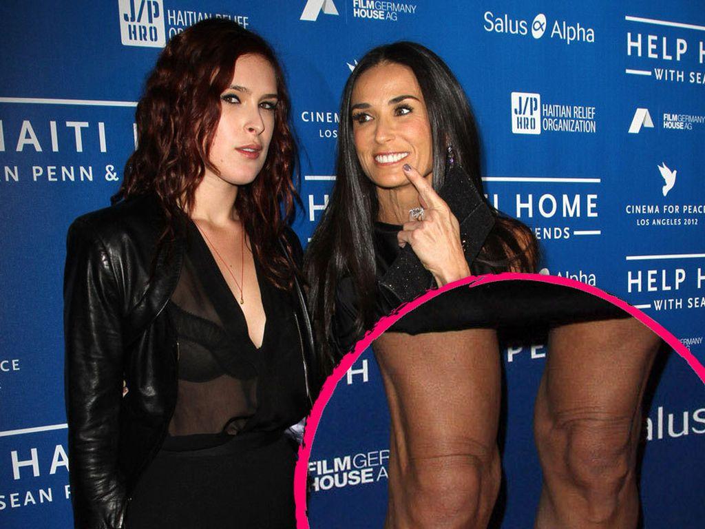 Collage: Demi Moore mit dünnen Beine