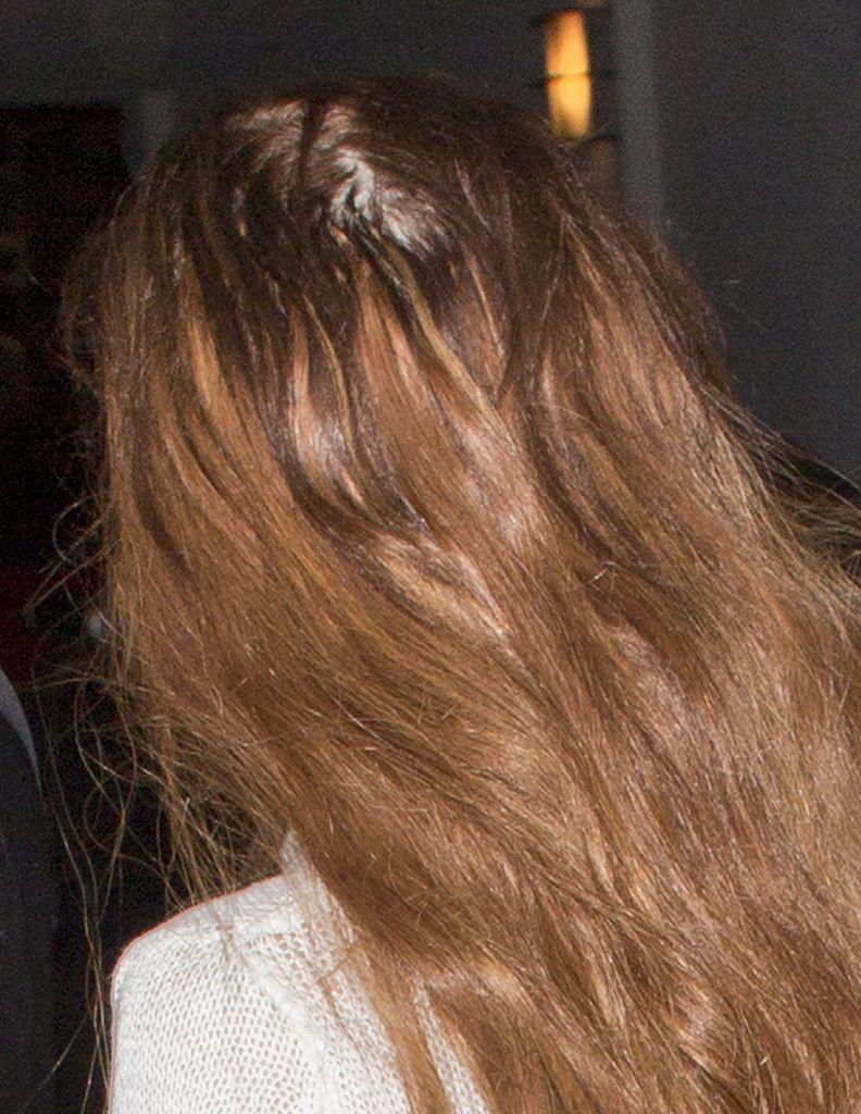 Expertenmeinung Woher Kommt Lindsays Haarausfall Promiflashde