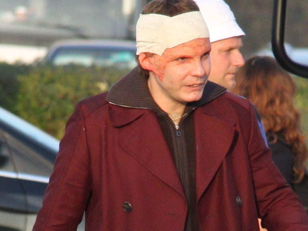Daniel Brühl im Film durch Verbrennungen entstellt ...