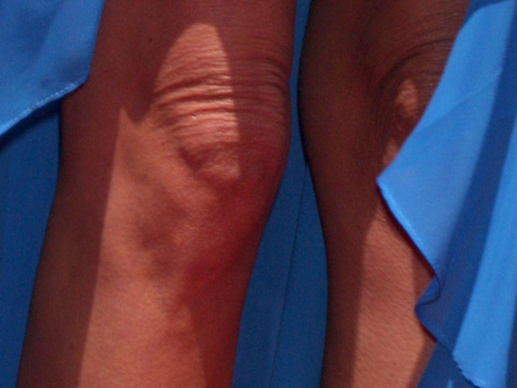 diese faltigen knie sind erst 37 jahre alt! | promiflash.de