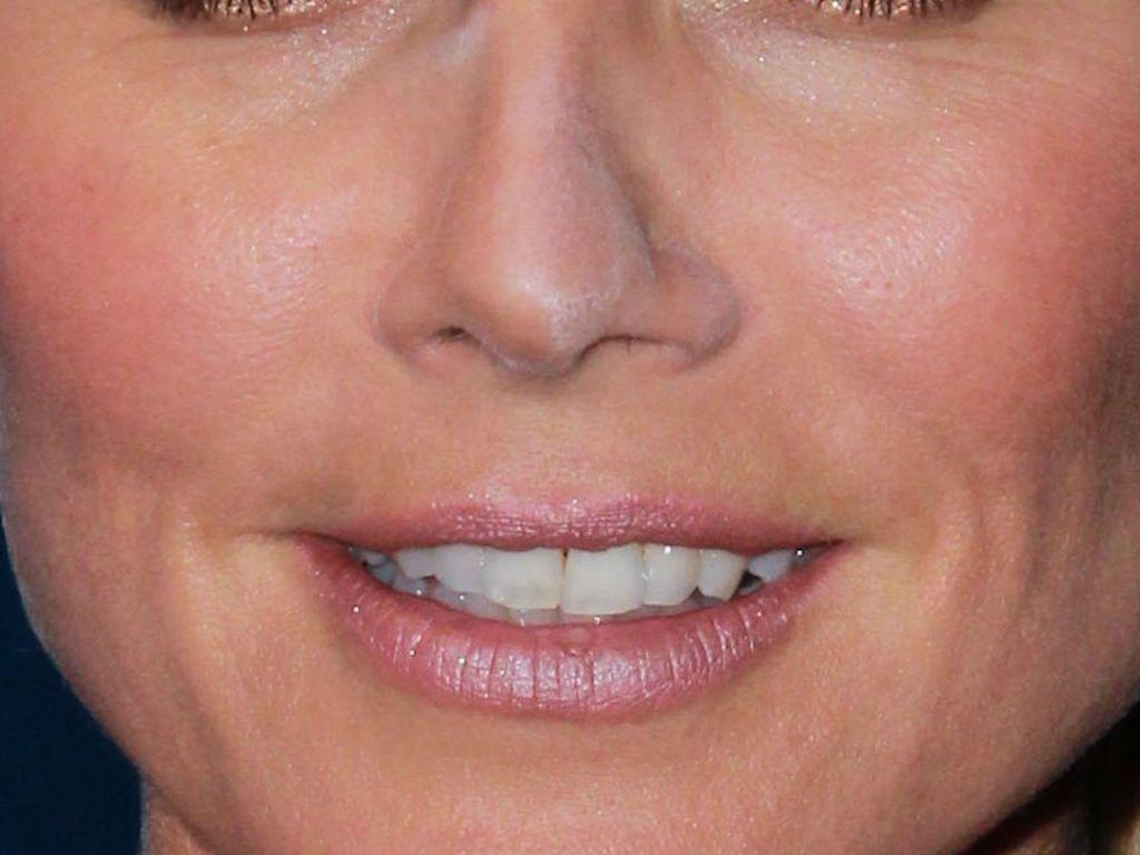 Heidi Klum Nase