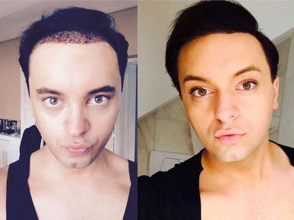 Julian F.M. Stoeckel vor und nach seiner Haartransplantation im Juli 2015