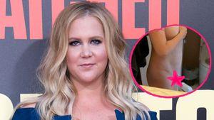 Nackt-Selfie: Amy Schumer zeigt ihre Kaiserschnittnarbe!