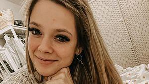 Hautprobleme: Anne Wünsche schämt sich nicht für Pickel