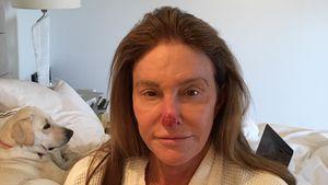 Verstümmelte Nase: Caitlyn Jenner postet After-OP-Pic!