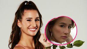 Foto-Vergleich: Hatte dieses Bachelor-Babe eine Nasen-OP?