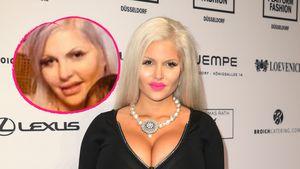 Aufgequollen: Was ist mit Sophia Vegas' Gesicht passiert?
