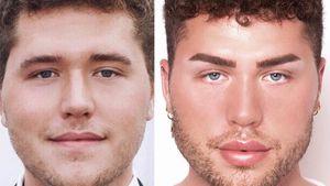 """Vorher-Nachher: Beauty-Eingriffe von """"Prince Charming""""-David"""