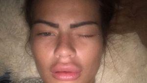 """Allergie statt Botox: """"Get the Fuck out""""-Melanies Mega-Lips!"""