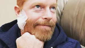 """""""Modern Family""""-Jesse: Krebsgeschwür aus Gesicht entfernt"""
