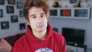 Also doch: YouTube-Star Julien Bam gibt seine Nasen-OP zu!