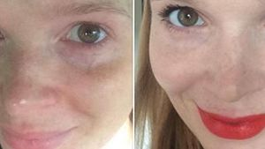 Krass! Das macht Make-up aus Karoline Herfurth