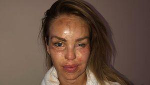 Verletzung durch Säure-Angriff: Katie Piper teilt Schock-Pic