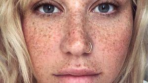 Sommersprossen: Sängerin Kesha strahlt komplett ohne Make-up