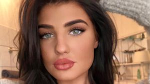 "Beauty-Fail: ""Love Island""-Laura regt Lippenkorrektur auf"