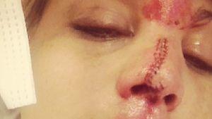 Lisa D'Amato nach Nasenbeinbruch völlig entstellt!
