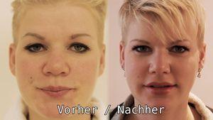 Nach 6 Wochen OP-Verband: Melli Müller zeigt ihre neue Nase!