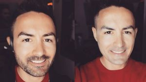 Lässiger Bart oder Kahlschlag? Was steht Menderes besser?