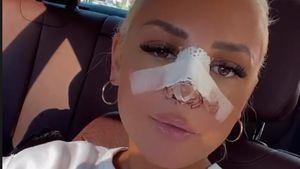 """""""Rieche nichts"""": Michelle Daniaux gibt Update nach Nasen-OP"""