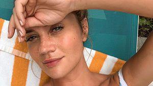 Sommersprossen im Winter: Fans feiern Nadine Kleins Look
