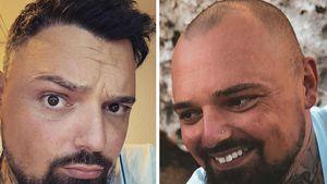 Nach sieben Jahren Glatze: Nik Schröder hat endlich Haare!