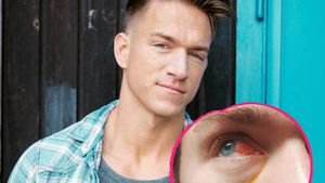 Fahrradunfall: Patrick Fabians Auge total blutunterlaufen