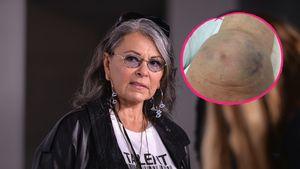 Roseanne Barr und ihr gebrochenes Knie