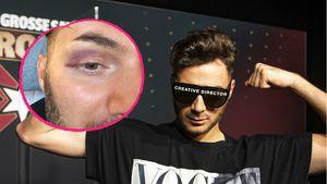 """""""Andenken von Serkan"""": Sam Dylan zeigt Promiboxen-Veilchen"""