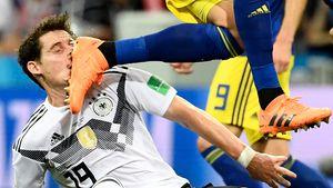 Tritt ins Gesicht: Sebastian Rudy muss blutend vom WM-Rasen!