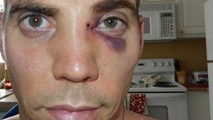 Brutaler Stunt: Steve-O bricht sich im TV die Nase