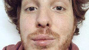 Gesicht geschwollen: Deshalb war YouTube-Unge im Krankenhaus