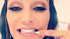 Zahnspange mit 48! Verona Pooth zeigt ihre Problemzone