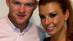 Wayne Rooney: Glatze nach Haartransplantation