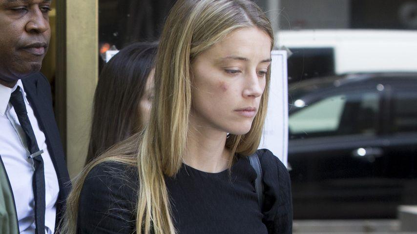 Amber Heard mit vermeintlichen Verletzungen bei einem Gerichtstermin