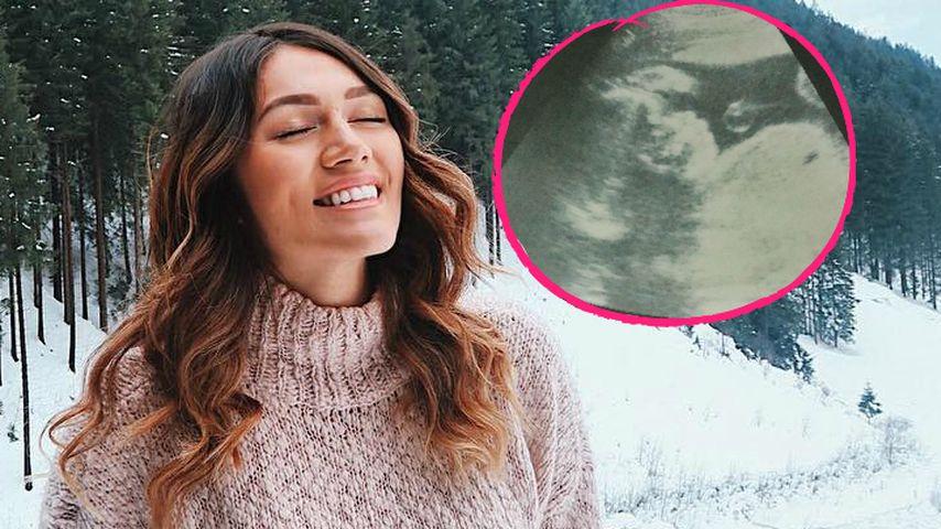 Intimer Einblick: Anna-Maria Damm teilt Ultraschall-Bild!
