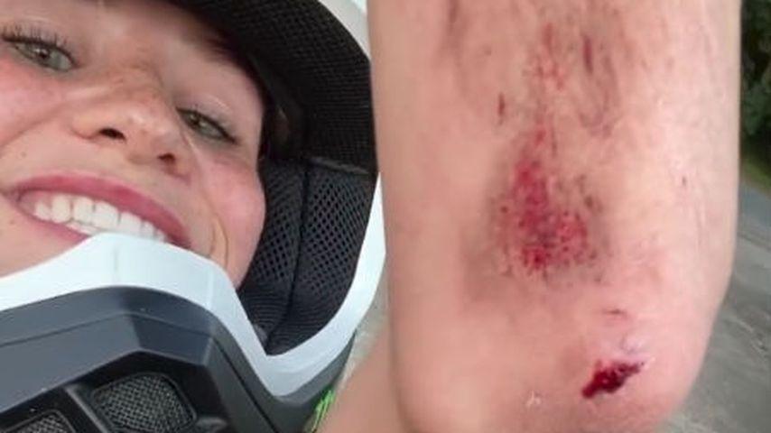 Blutige Wunde: Betty Taube hatte kleinen Motorrad-Unfall