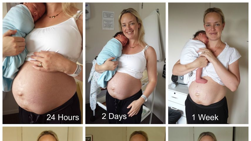 Mutig! Bloggerin zeigt ihren ungeschönten After-Baby-Body