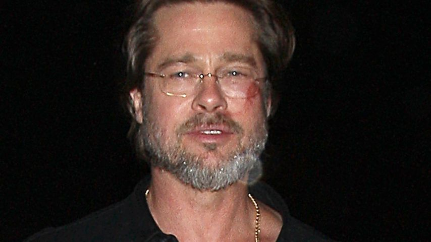Brad Pitts Gesichts-Blessuren: So passierte das Unglück!