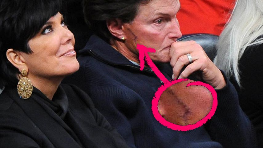 Bruce Jenner mit großer Narbe auf der Wange