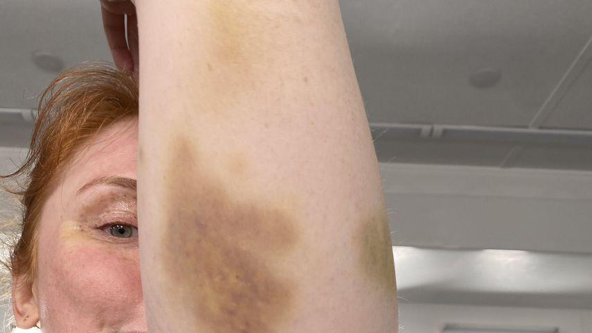 Bryce Dallas Howard mit blauen Flecken