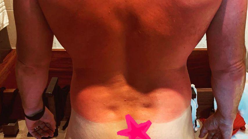 Chris Pratts verbrannter Rücken