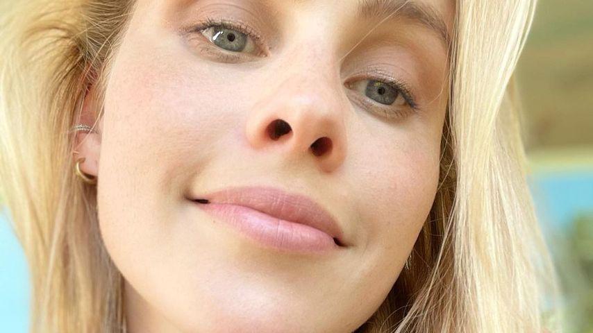 In Schwangerschaft: Claire Holt litt an Hyperpigmentierung