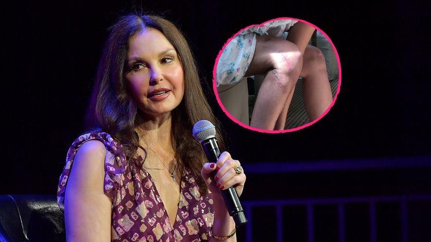Nach Horror-Unfall: Ashley Judd zeigt Narben an ihrem Bein