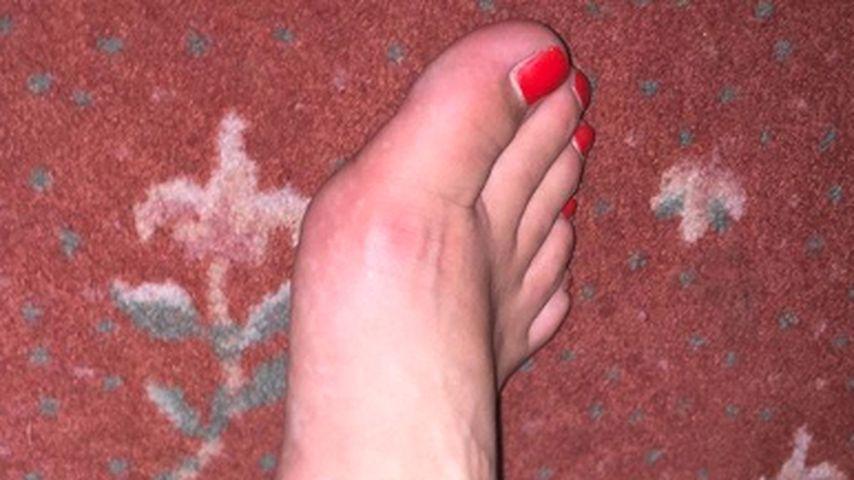 Daniela Katzenbergers geschwollener Fuß