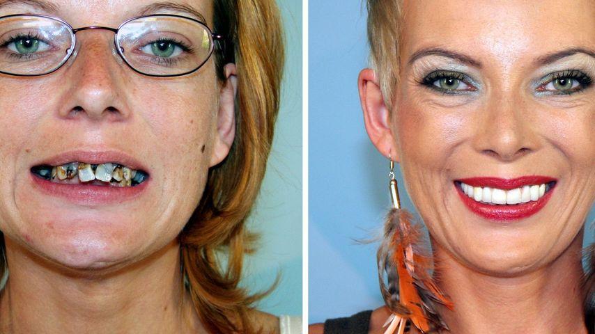 Extrem schön: Verfaulte Zähne weichen dem Lächeln
