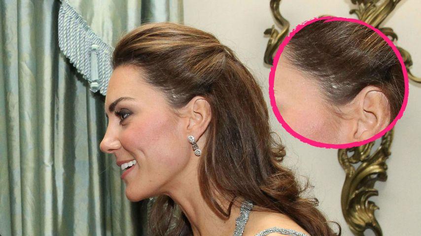 Narbe am Kopf, schräger Humor: Sieben Geheimnisse über Kate!