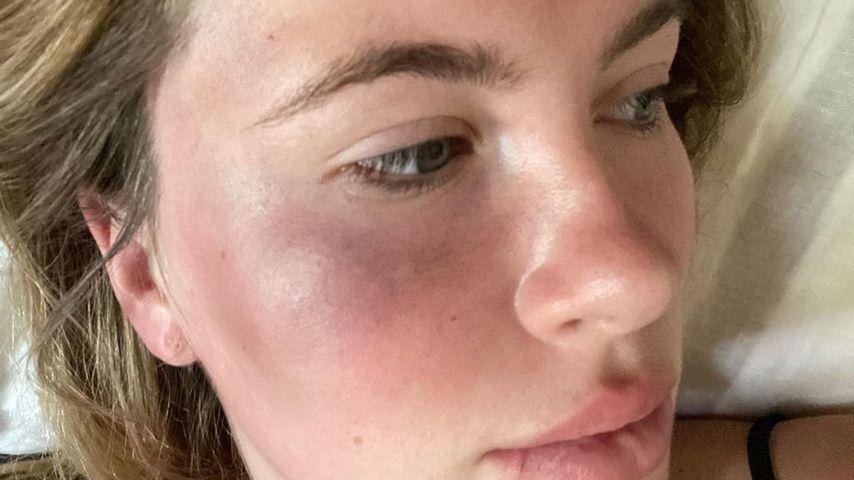 Heftige Fotos: Ireland Baldwin wurde überfallen und verletzt