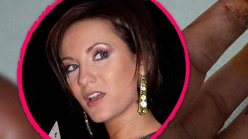 Autsch! Porno-Star Jana Bach zeigt ihre Wunden