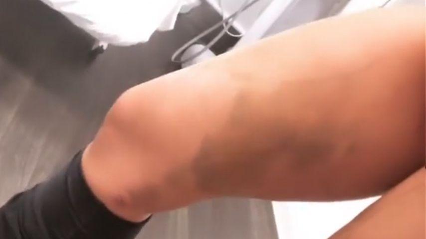 Jenny Frankhauser zeigt ihre Beine nach er Lipödem-OP