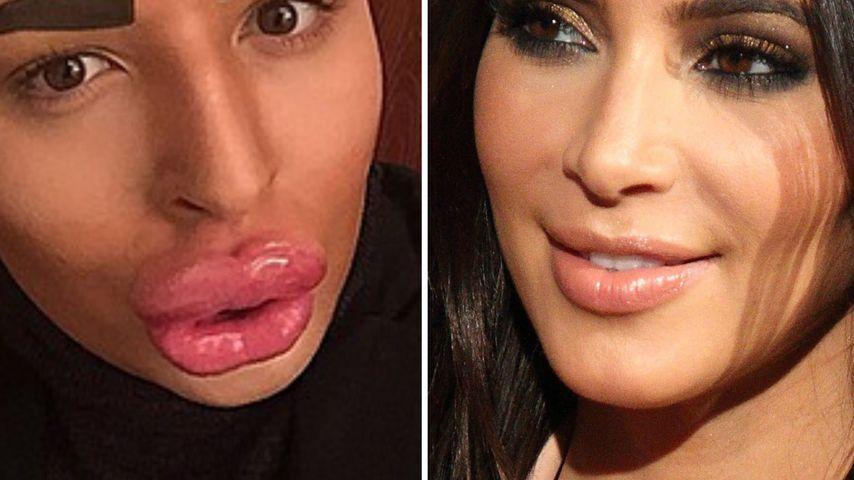 OP-Rausch! Irrer Fan will Kardashian-Klon werden